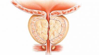 صورة أعراض سرطان البروستات وطرق الوقاية منه