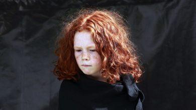 صورة لماذا يشعر أصحاب الشعر الأحمر بالألم؟