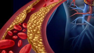 صورة علامات غريبة تشير إلى ارتفاع مستوى الكوليسترول في الدم