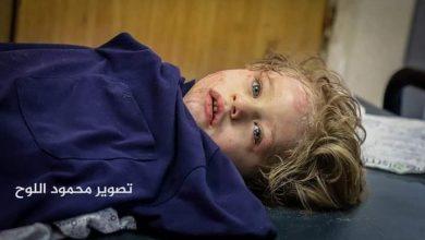 صورة بالصور: ارتفاع عدد الشهداء في غزة إلى أكثر من 174 بينهم 50 طفلاً و25 امرأة