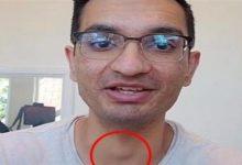 صورة بالصدفة.. أمريكي يكتشف إصابته بالسرطان بعد نشره فيديو على تيك توك