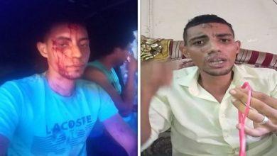 صورة على مهلك يا قمر.. تفاصيل الاعتداء على مصري أثناء دفاعه عن زوجة شقيقه ضد المتحرشين بها