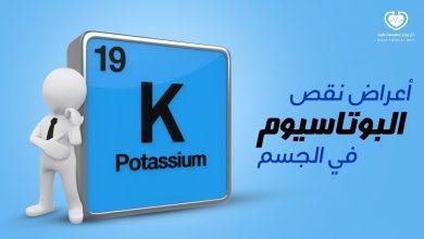 صورة أعراض نقص البوتاسيوم في الجسم