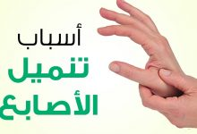 صورة ما هو سبب تنميل اليد اليمنى ؟ ومتى يكون خطيراً؟