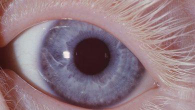 صورة ماذا تسمى الخلايا العصبية التي تستقبل المنبه في الجلد والعيون ثاني متوسط